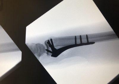 Distal Radius Fractures - Wrist Fractures3