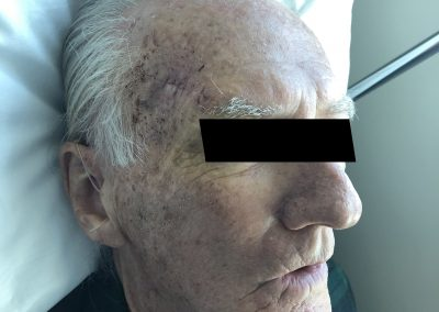 Facial Lacerations1