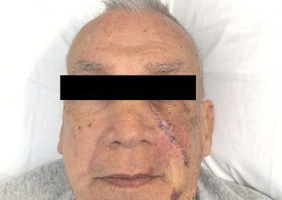 Facial Lacerations2